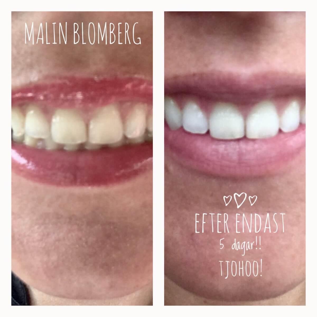 bra tandkräm för vitare tänder